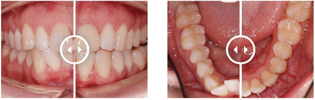 Orthodontic Aligners treatment before and after. Treatment time: 9 months
