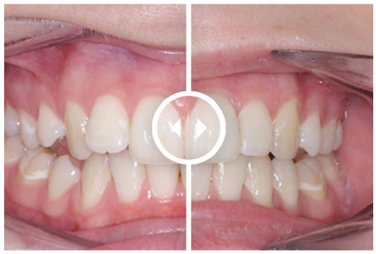 Orthodontic Aligners treatment before and after. Treatment time: 3 months